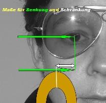 schraenkung4-210×203.jpg